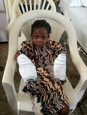 Little Girl Whose Hands Were Burnt By Grandma In Edo Undergoes Surgery (Photos)