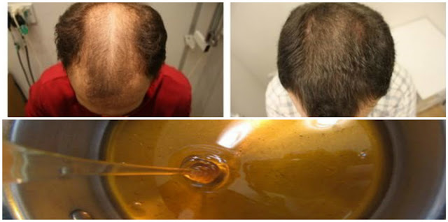 Baldness Treatment Recipe, After Two Days Your Hair Will Begin To Grow