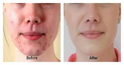 Perbedaan sebelum dan setelah bersih dari jerawat