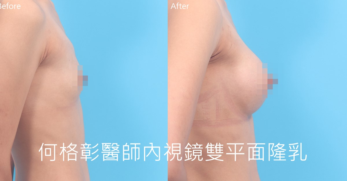 台中內視鏡隆乳