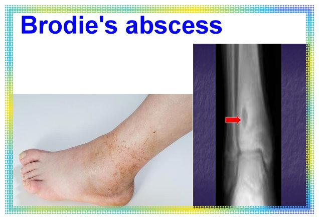 Brodie's abscess