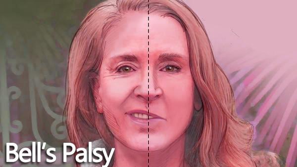 Mengenal Bell's Palsy, Kelumpuhan pada Sebelah Wajah