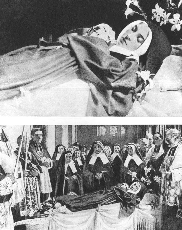Santa Bernadette, foto (detalhe acima e conjunto) tirada entre após a última exumação (18 de abril 1925) e antes de ser guardada na urna atual (18 de julho 1925)
