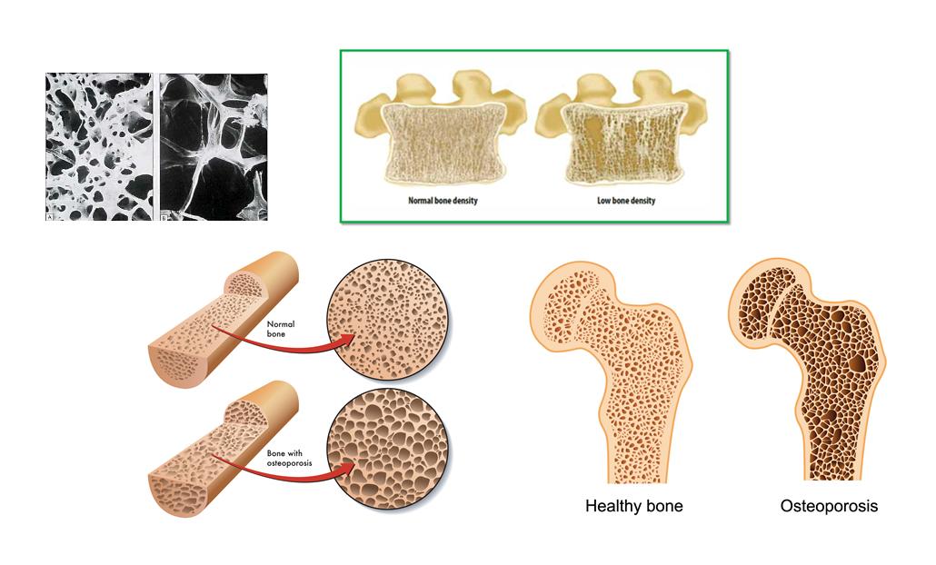 Bone Mineral Density in Childhood Study (BMDCS) | NICHD ...