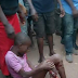 Bus Crushes Young Girl's Leg In Enugu State, Nigeria