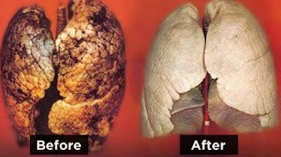Curahan Online Salah satu organ tubuh manusia yang berperan penting buat tubuh yaitu paru-paru yang berfungsi sebagai alat pernafasan,apabila paru-paru kotor yang bisa menimbulkan berbagai macam penyakit seperti asma,kanker dan berbagai macam penyakit batuk.    Lalu apa saja Tips Ampuh Membersihkan Paru Paru Kotor Bagi Para Perokok Berat?    Perlu kita garis bawahi,saat ini penyebab besar terjadinya paru-paru kotor adalah ROKOK.Sebatang rokok kita ketahui banyak mengandung zat kimia yang tidak kita sadari bahwa kita telah meracuni diri kita sendiri,nah itu masih satu batang gimana lagi kalau satu bungkus,bahkan bukan cuma dari rokok polusi udara dan lain sebagainya menjadi pemicu paru-paru kotor.     Nah buat kita semua yang masih peduli buat kesahatan paru-paru kita sendiri karena mencegah lebih baik dari pada mengobati disini saya menganjurkan,memberikan tips untuk para sahabat-sahabat sebagai jalan alternatif untuk membersihkan paru-paru.    Tips Ampuh Membersihkan Paru Paru Kotor Bagi Para Perokok Berat    Dibawah ini sebagai bahan-bahan yang perlu sahabat gunakan sebagai berikut,untuk membersihkan paru-paru kotor:    Tips Ampuh Membersihkan Paru Paru Kotor Bagi Para Perokok Berat      Bahan bahan :  – 2 Sendok makan kunyit  – 1 potong kecil jahe  – 1 liter air  – 400 gr bawang putih  – 400 gr gula (putih atau merah).    Cara Membuat :  1. Tambahkan sejumlah air dengan takaran       sedang ke dalam mangkuk dan panaskan.  2. Kemudian tambahkan gula.  3. Ketika air mulai mendidih, tambahkan      bahan lain nya.  4. Biarkan mendidih sampai 5 menit dan      kemudian matikan kompor, dinginkan      dengan suhu ruangan.  5. Simpan ramuan tersebut dalam kulkas.    Cara mengkonsumsi :  - Ambil 2 sendok makan ramuan tersebut    di pagi hari dengan kondisi perut kosong.  - Dan 2 sendok makan di malam hari, setelah    makan malam.    itulah Tips Ampuh Membersihkan Paru Paru Kotor Bagi Para Perokok Berat.apakah kamu bersesia meninggalkan Rokok dari sekarang?  Bagi saudara se