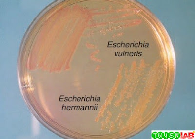 Comparison of the colony morphology of Escherichia vulneris and a yellow-pigmented Escherichia hermannii on MacConkey agar.