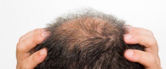 perdita di peso e perdita di capelli nei canina