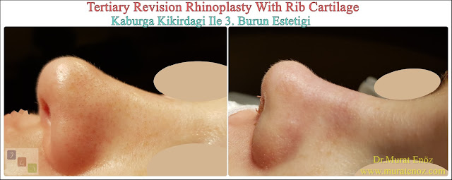 Revision nose aesthetic surgery - Revision nose job in Istanbul - Tertiary nose job in Turkey - - Tertiary rhinoplasty - Tertiary rhinoplasty challenges - Revision rhinoplasty using rib cartilage - Cost of Revision Rhinoplasty in Istanbul - Healing After Revision Rhinoplasty Operation - Revision Rhinoplasty in Istanbul -  Tertiary rhinoplasty using rib cartilage in Istanbul Turkey