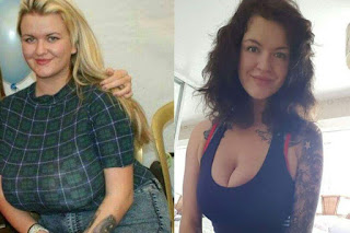 Woman's quick weight loss story