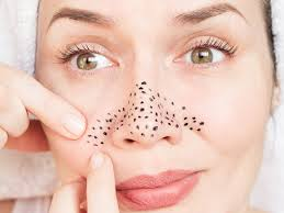 Various Ways To Remove Blackheads Naturally