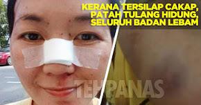Thumbnail image for Gara-gara Tersilap Cakap, Wanita Ini Patah Tulang Hidung & Lebam Seluruh Badan Dibelasah Suami