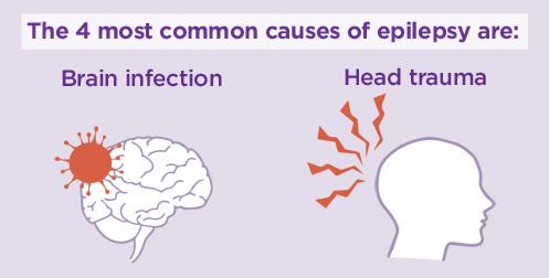 Penyebab Penyakit Epilepsi