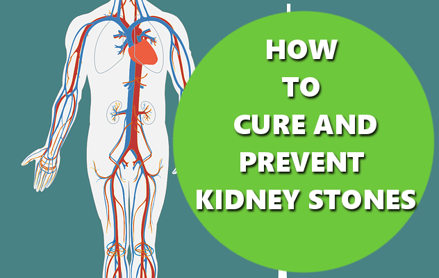HOW TO CURE AND PREVENT KIDNEY STONES BASICHOWTOS.COM