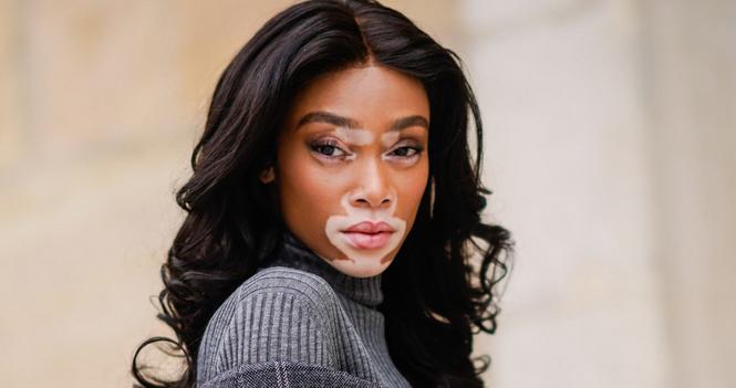 Mengenal Penyakit Kulit Bernama Vitiligo Yang Dialami Model Ini