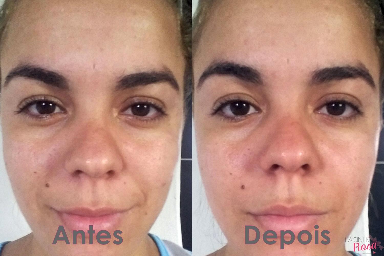 limpeza de pele antes e depois hidratante