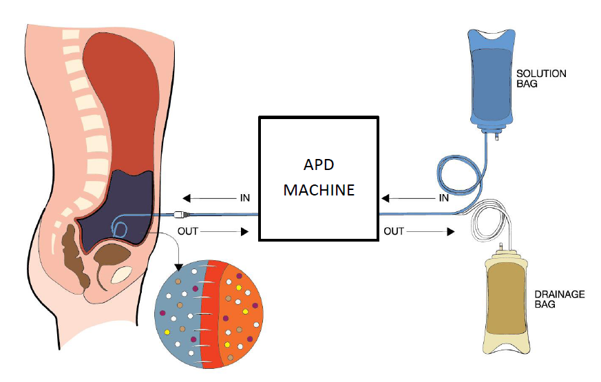 Automated peritoneal dialysis (APD)