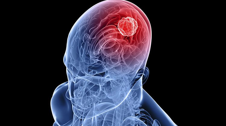 Cell phones and risk of brain tumors: What's the real science?