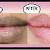 10 MINUTES, 2 INGREDIENTS AND YOUR LIPS WILL BECOME PINK NATURALLY, THIS REMEDY WORKS EVEN FOR DARK BLACK LIPS TOO!