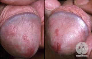 Penyakit Sipilis Malaysia