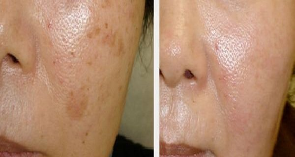 The Most Efficient Remedies to Remove Brown Spots on Your Face Naturally