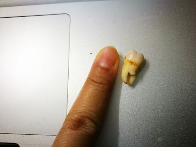 The not-so-wise tooth