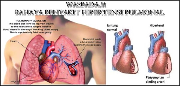 http://www.pusatmedik.org/2017/01/hipertensi-pulmonal-definisi-penyebab-dan-pengobatan-serta-pencegahan-hipertensi-pulmonal-menurut-ilmu-kedokteran.html