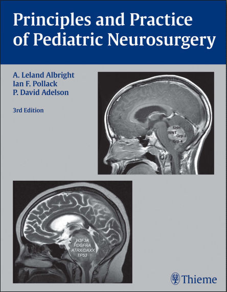 Principles and Practice of Pediatric Neurosurgery, 3rd Edition (2014) [PDF]