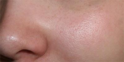 Какой процедурой можно убрать поры на лице