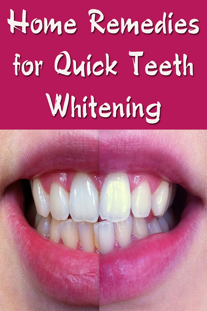 Home Remedies for Quick Teeth Whitening