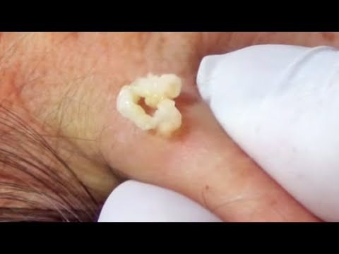 Multiple genital sebaceous cyst