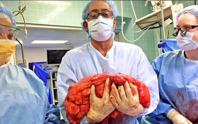 barriga-de-cerveja-tumor-838x524
