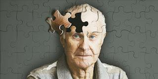 Nuevo tratamiento contra la cura del Alzheimer