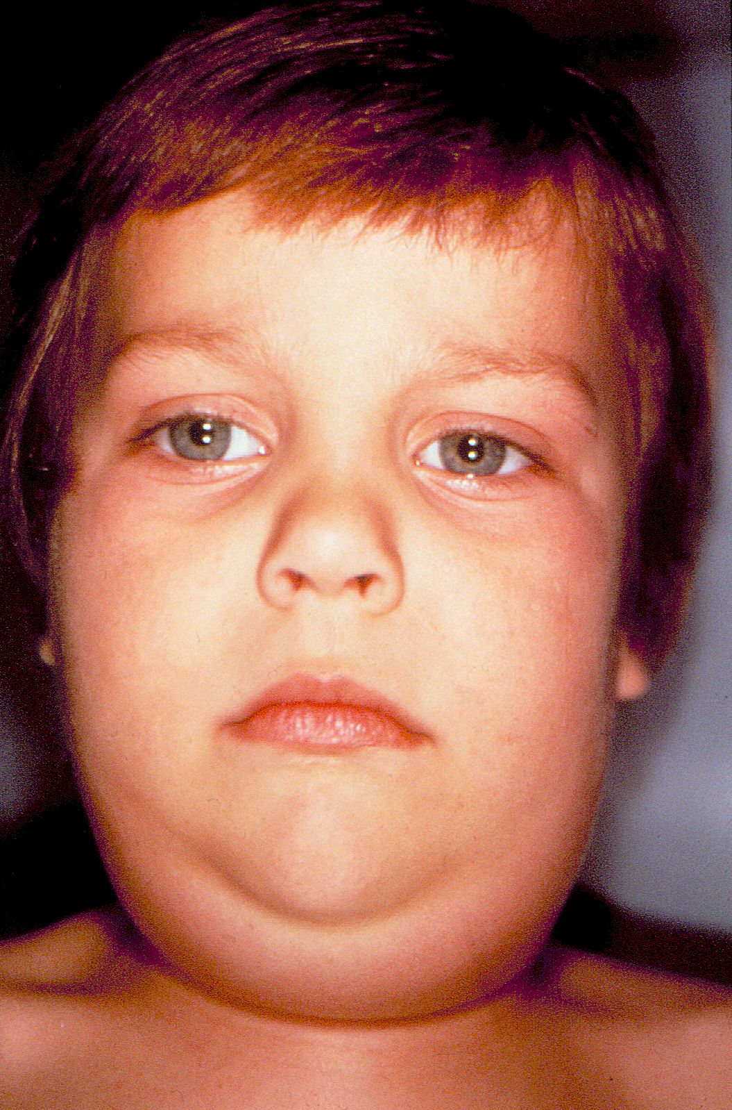 mumps - photo #6