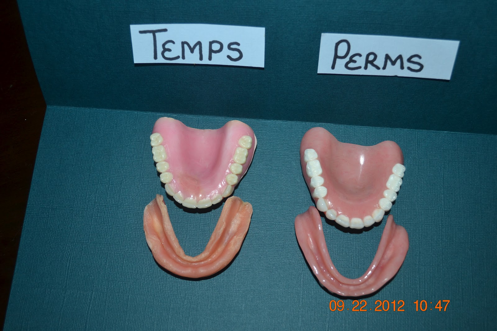 Temporary vs permanent dentures iweardentures temporary vs permanent dentures solutioingenieria Image collections