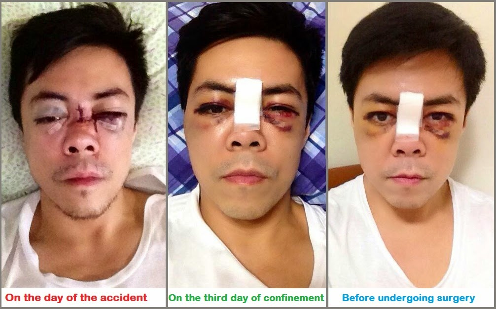 Face of Lance Raymundo After Gym Accident.