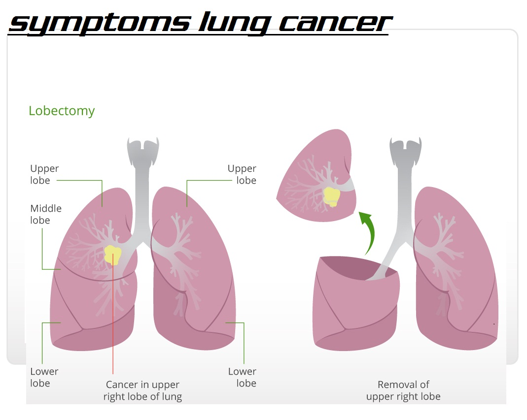 About Lung Cancer 3000