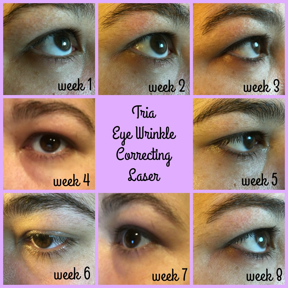 Tria Eye Wrinkle Correcting Laser With Before And After