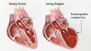 cara menyembuhkan jantung bengkak