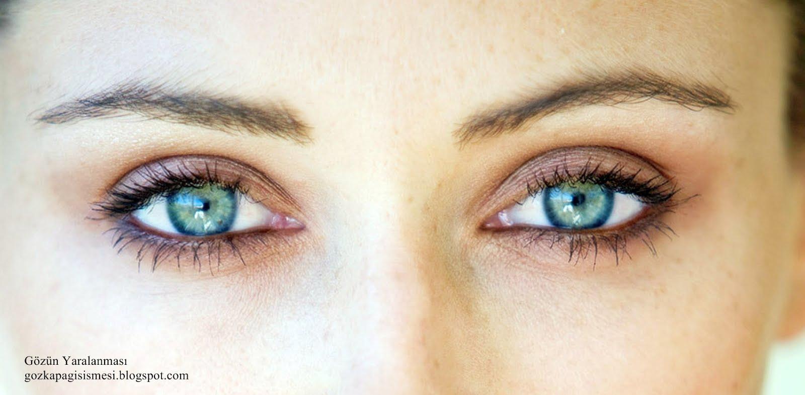 Göz Çapağına Ne iyi Gelir Bitkisel Çözüm Nedir