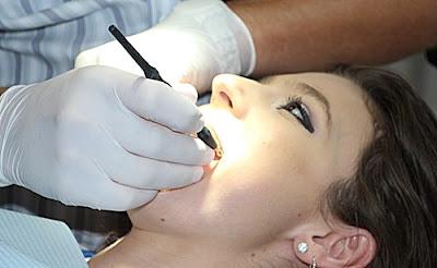 ön diş kırılması tedavisi