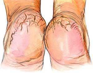 Rachaduras nos pés: tratamento natural