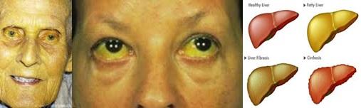 Cara Mengobati Penyakit Kuning secara Tradisional Dan Ampuh