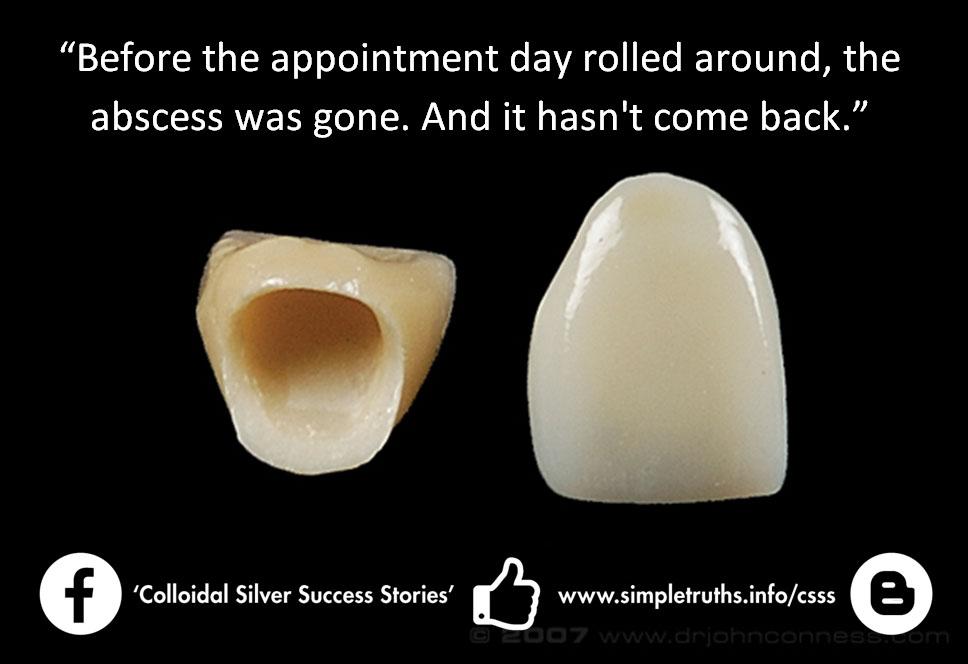 molar tooth abscess - 968×664