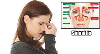 Obat Sinusitis Tradisional Paling Mujarab
