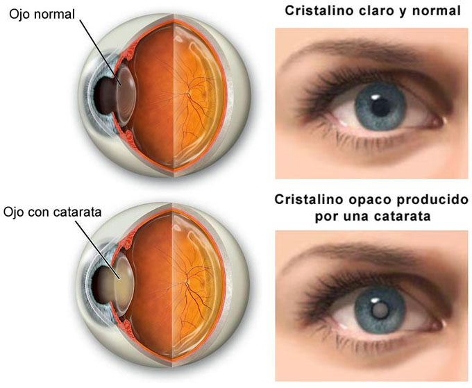 181677cd7c21d9 Cómo tratar el Astigmatismo en las Cirugías de Catarata? - Por Una ...