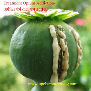 Treatment Opium Addiction