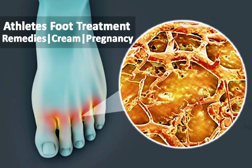 Athletes Foot Treatment, Remedies, Cream and Pregnancy