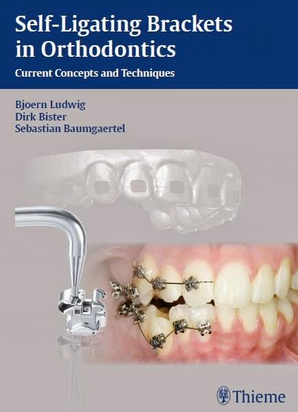 Self-Ligating Brackets in Orthodontics ..... Current Concepts and Techniques - Bjoern Ludwig,Dirk Bister,Sebastian Baumgaertel - © 2012.PDF