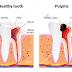 Pulpitis Definisi Penyebab Dan Pengobatan serta Gejala Klinis Penyakit Pulpitis Menurut Ilmu Kedokteran